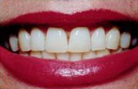 Whitening - Before