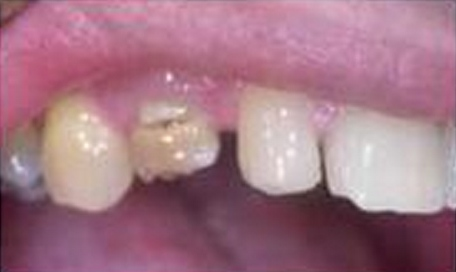 Dental Crowns - Before