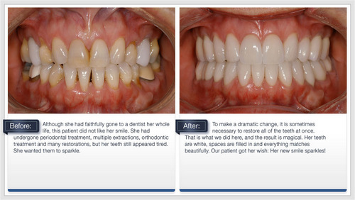 Dental Crowns - Before and After