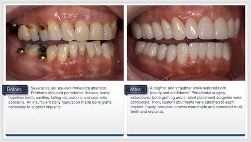 Dental Implants - Before and After